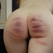 Burning blistered bare ass and tears of pain - Unique Bondage - Pic 1