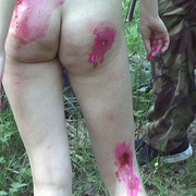 Two naked girls in the forest hunted down - Unique Bondage - Pic 15